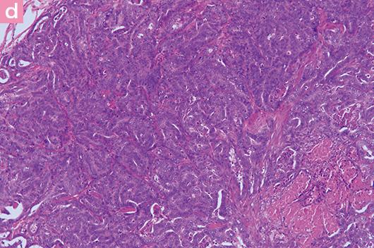d:グレード3の乳腺癌