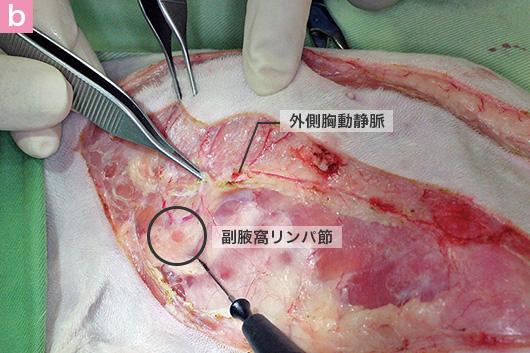 b 外側胸動静脈 副腋窩リンパ節