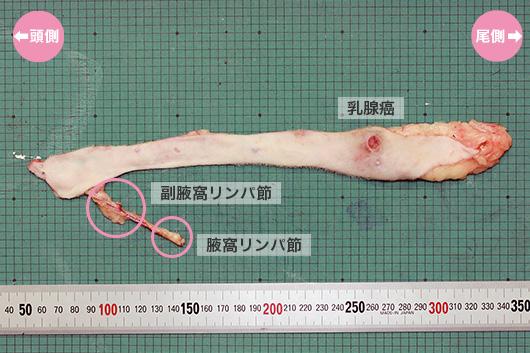 図18.副腋窩リンパ節および腋窩リンパ節とともに切除された乳腺