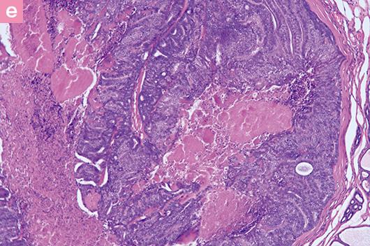 c:グレード3の乳腺癌