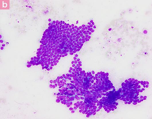 図7. 猫の乳腺癌の細胞診画像 b
